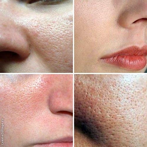 Крем звужує пори на обличчі в домашніх умовах